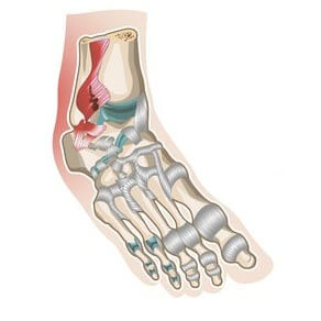 image of a grade two ankle sprain
